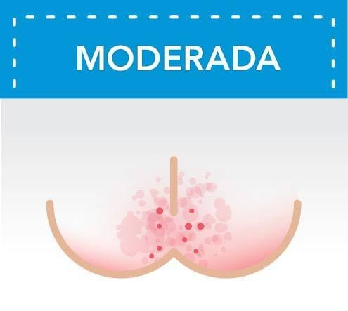 Dermatitis del pañal moderada